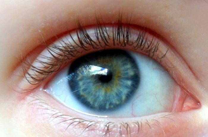 gul ring runt pupillen