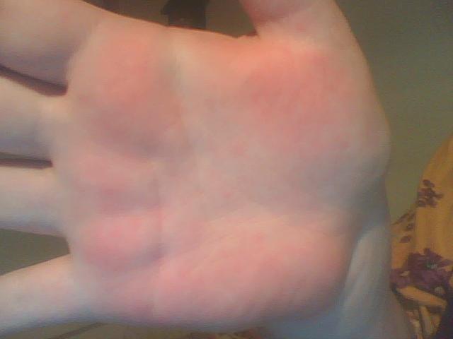 klåda i handflatorna allergi