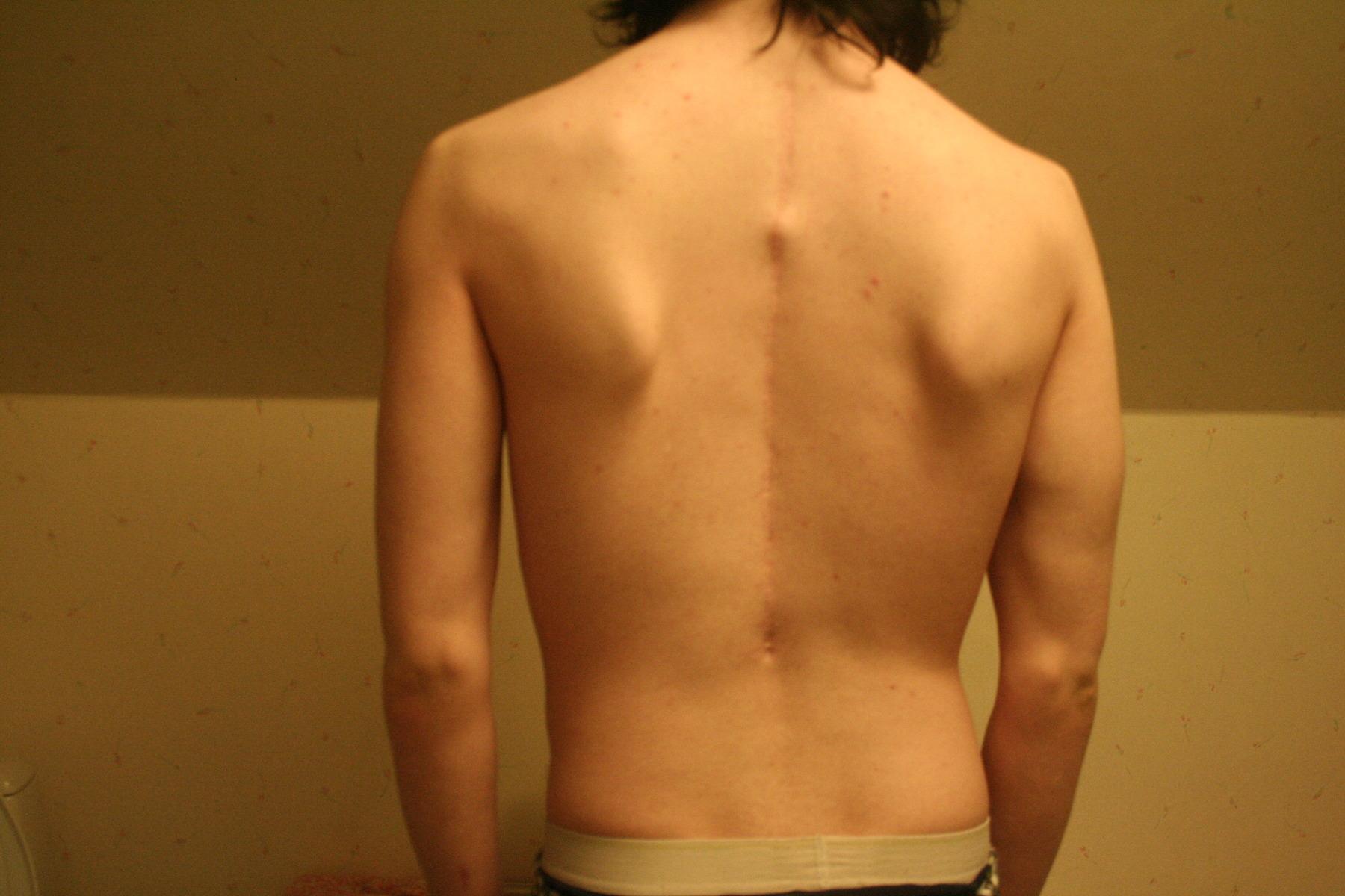 ont mellan skulderbladen cancer