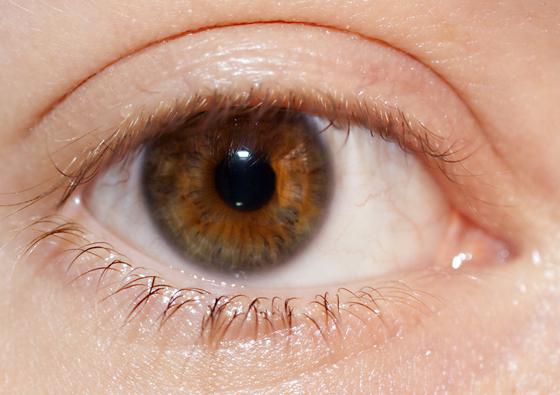 svart ring runt iris