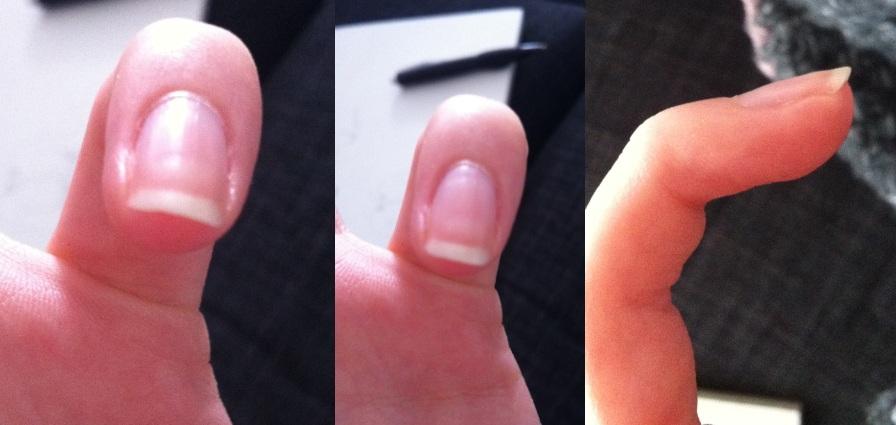 vitaminer för naglar