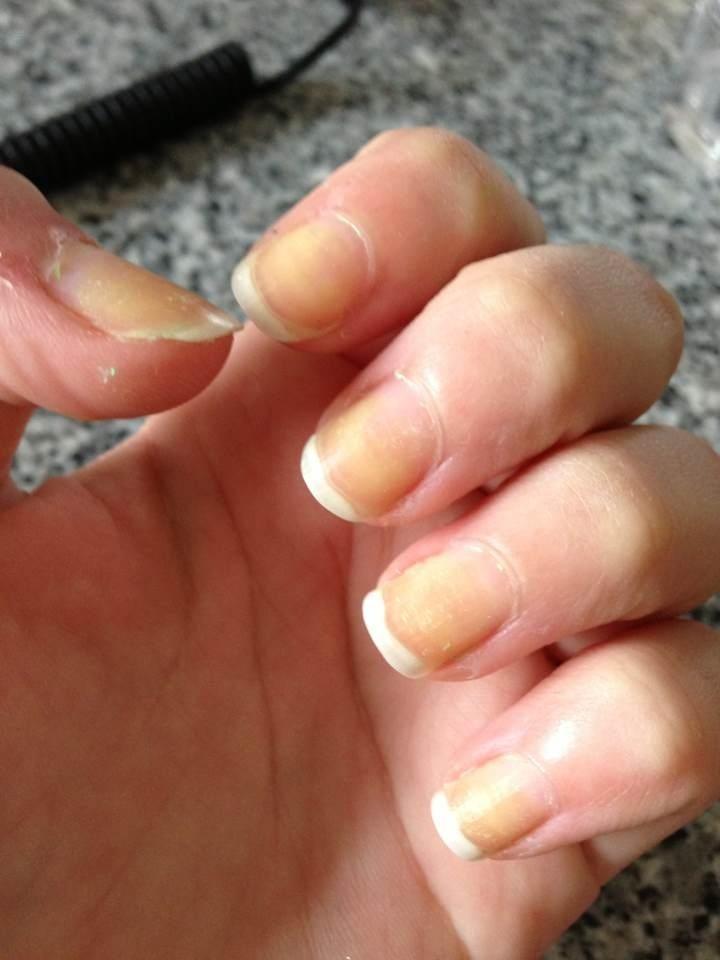 varför får man gula naglar