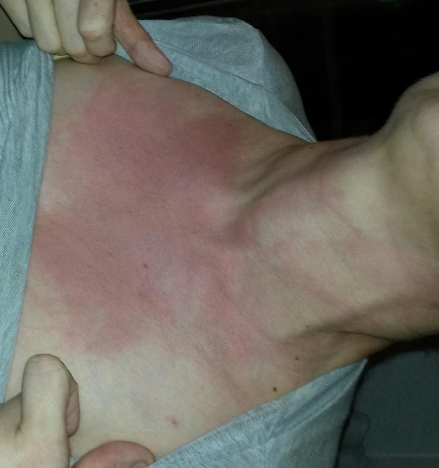 vad är jag allergisk mot