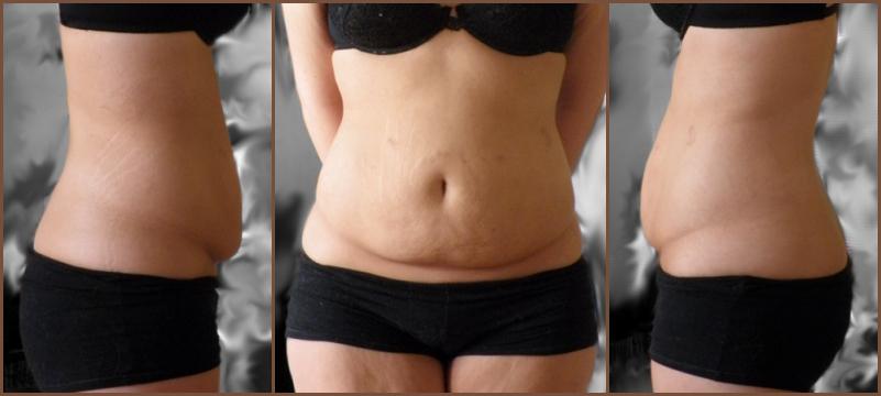 bränna fett på magen kvinna