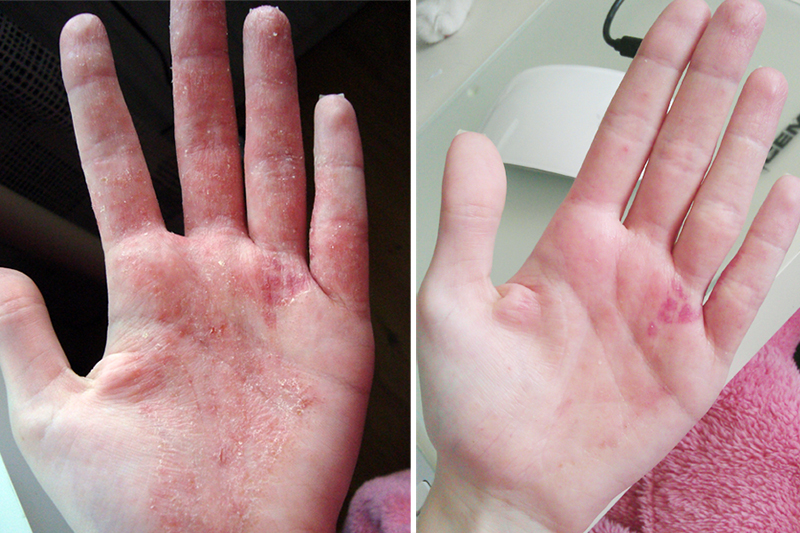 allergisk reaktion akrylnaglar