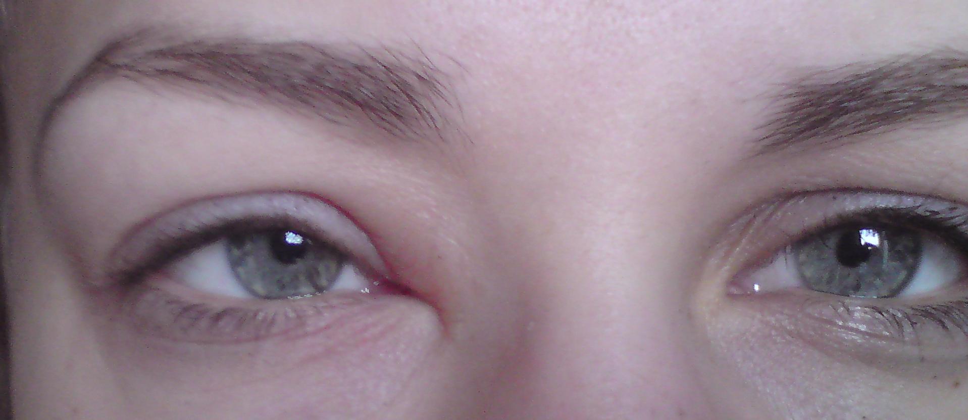 röd och svullen runt ögonen