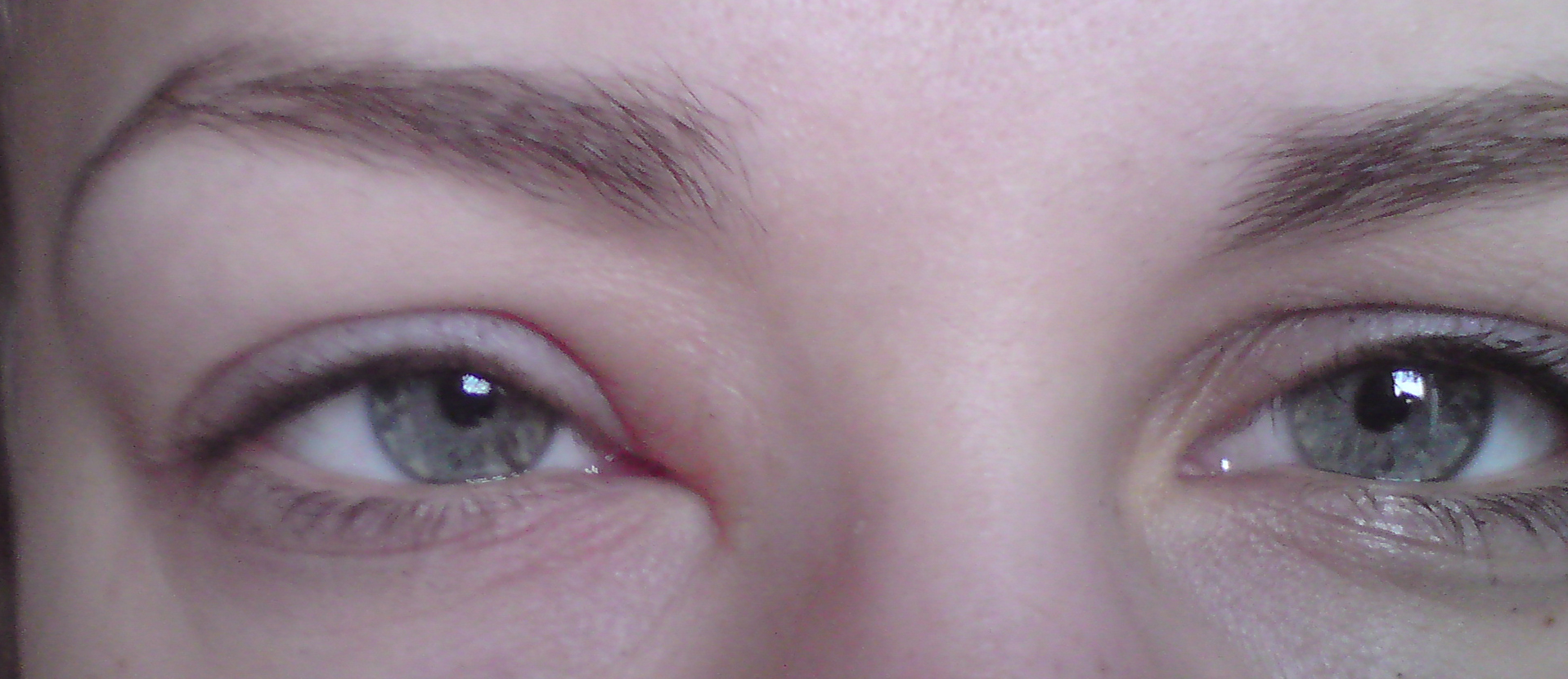 bihåleinflammation röda ögon