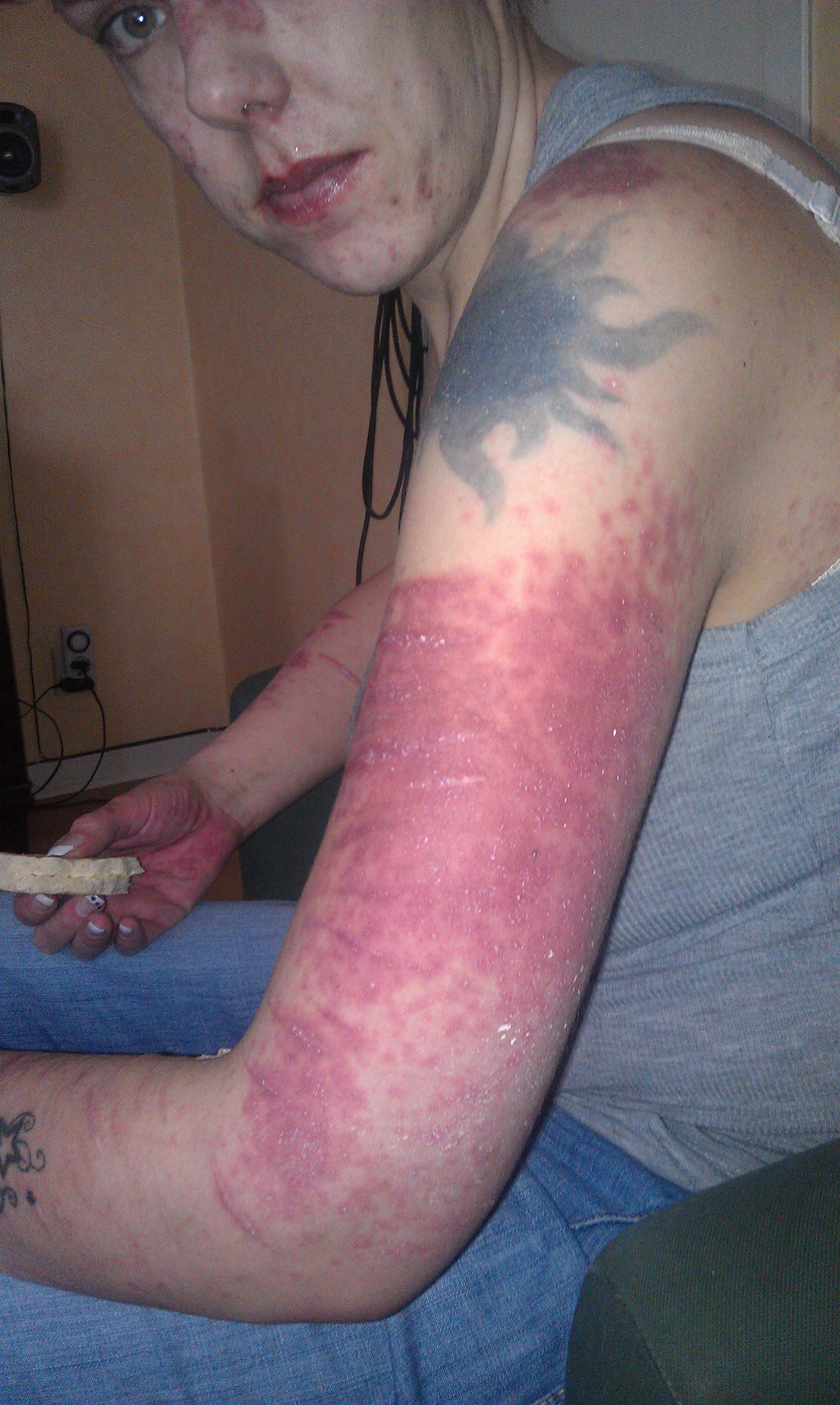 allergisk reaktion utslag tvättmedel