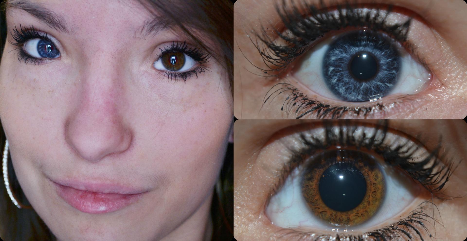 olika ögonfärg