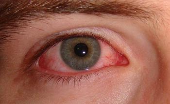 svamp i ögonen